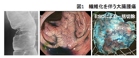 図1.繊維化を伴う大腸腫瘍